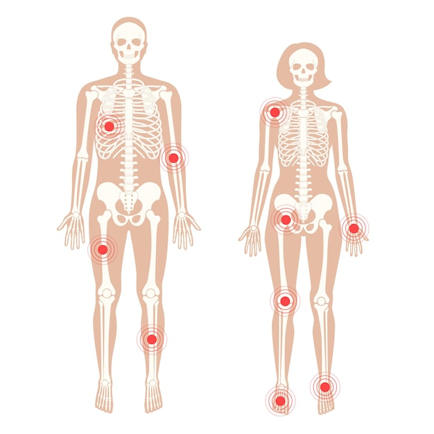 Pain in human body. male and female skeleton silhouette.