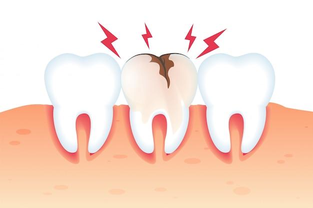 깨진 치아 그림 현실적인 3d에 통증이.