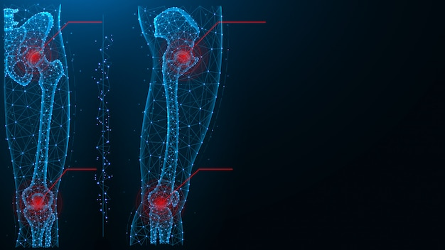 股関節と膝関節の青いポリゴンのベクトル図の痛み