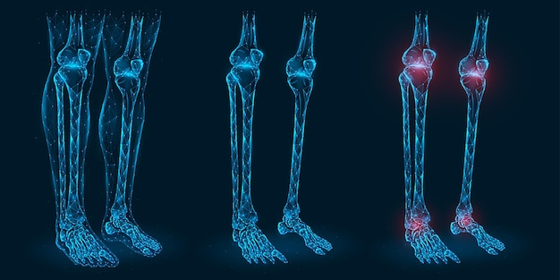Pain, injury or inflammation in the knees and ankles polygonal  illustration. low poly model of diseased knee and ankle joints.
