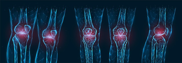 무릎 다각형 그림의 통증, 부상 또는 염증. 아픈 무릎 관절의 낮은 폴리 모델.