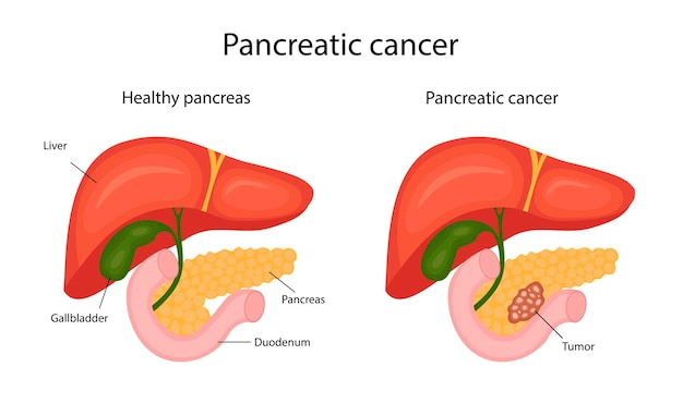 膵臓癌。インフォグラフィック。漫画風のイラスト。