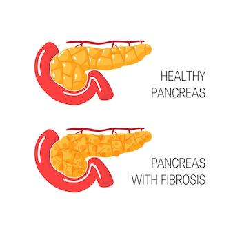 Концепция фиброза поджелудочной железы. медицинская иллюстрация здоровой поджелудочной железы и железы с хроническим панкреатитом