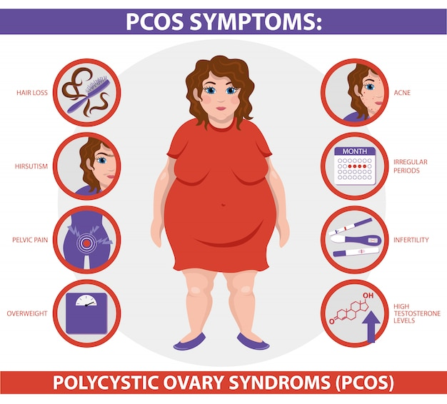 Pcos symptoms infographic.