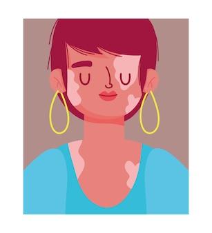 Perfectly imperfect, cartoon woman portrait with vitiligo