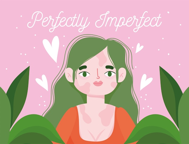 Perfectly imperfect, cartoon woman with pigmentation disease