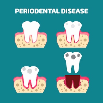 Periodontal disease icons set