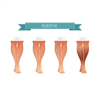 Phlebology infographic, treating varicose veins.  illustration of stage of vein diseases