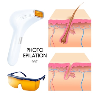 Photo epilation realistic illustration set