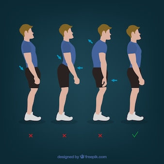 Physiotherapy bad back postures