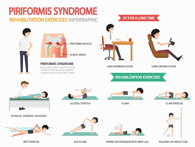 Piriformis syndrome rehabilitation exercises infographic, illustration.