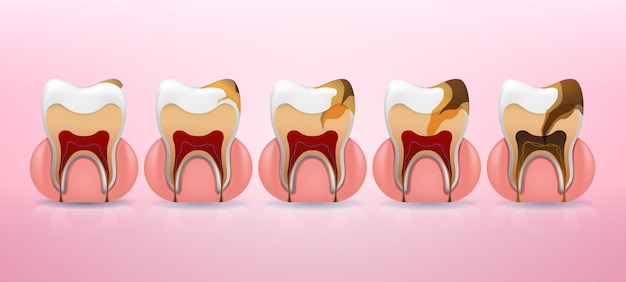 Placement steps of tooth caries structure  in realistic style.