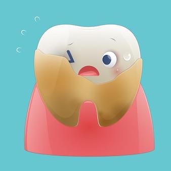 漫画の歯に付着したプラーク