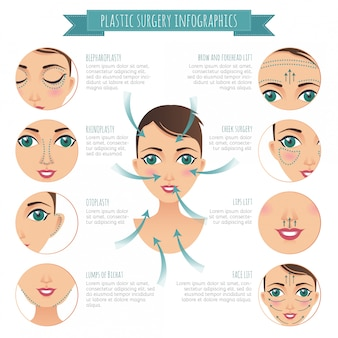Plastic surgery infographics. rhinoplasty, lumps of bichat, lifting, blepharoplasty, otoplasty