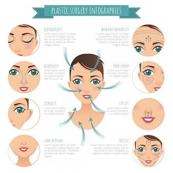 성형 수술 인포 그래픽. 코 성형술, bichat 덩어리, 리프팅, 안검 성형술, otoplasty