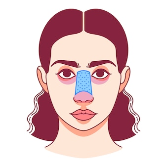 鼻の形成外科、鼻形成術。ベクトルイラスト。