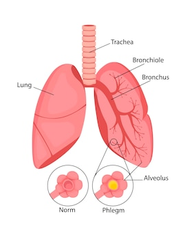 Pneumonia normal and inflammatory condition of the lungs and inflammation of the alveoli with fluid