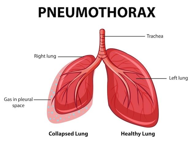 Diagramma del pneumotorace con polmone collassato e polmone sano