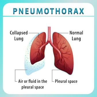 Pneumothorax diagram with collapsed lung and normal lung