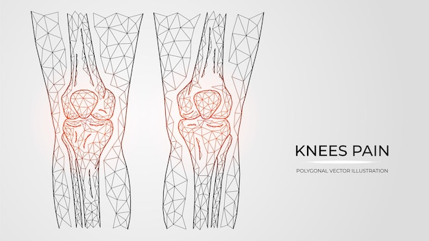무릎 통증, 염증 또는 부상의 다각형 벡터 일러스트. 인간의 다리 뼈 해부학.