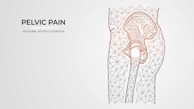 Polygonal vector illustration of pain, inflammation or injury in the pelvis and hip joint side view.