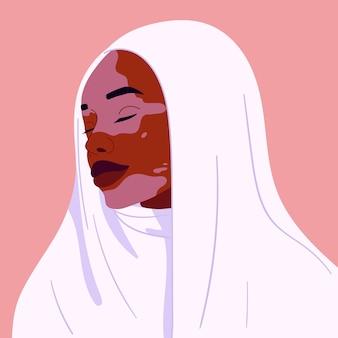 백반증이 있는 아름다운 웃고 있는 아프리카 여성의 초상화