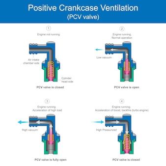 ポジティブ クランクケース ベンチレーション (pcv バルブ)。点火エンジンには、高圧による摩耗を防ぐために、内外の空気圧用のベントバルブが必要です。
