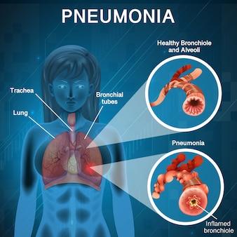 人間の肺の図と肺炎のポスターデザイン
