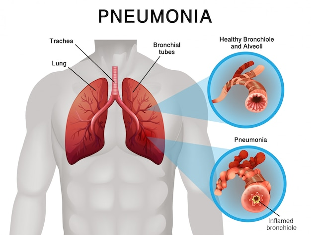 Poster design for pneumonia with human lungs