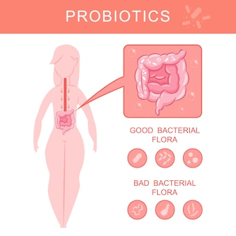 Probiotics infographics with woman silhouette and gut with good and bad bacterial flora vector cartoon illustration.