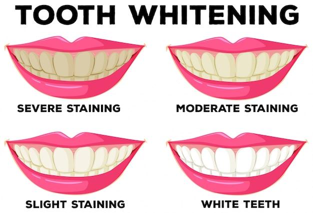 Процесс отбеливания зубов