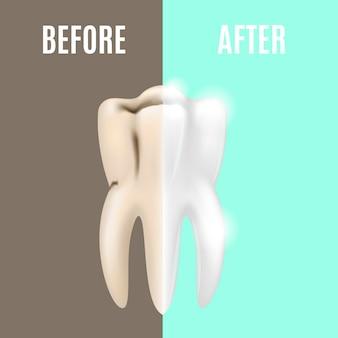 치과 건강 관리 stomatology 전후에 전문적인 치아 미백. 벡터 일러스트 레이 션