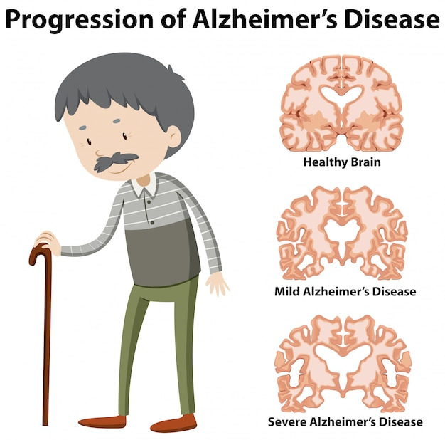 Progression of alzheimer's disease