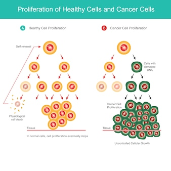 건강한 세포 및 암 세포의 증식. 신체의 정상적인 세포 증식과 암 세포 증식의 비교 그림.