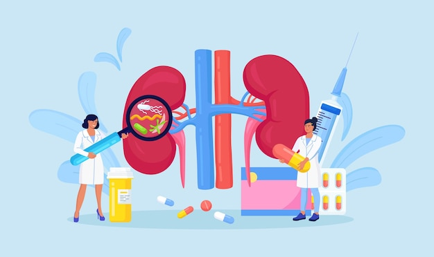 Pyelonephritis. tiny doctors nephrologist diagnosing and examining patient with kidney renal disease, urine test, diagnostic. doctors check health of kidneys. nephrology inner organs treatment