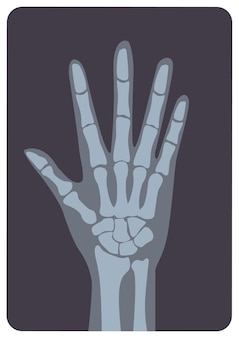 Radiograph, x-radiation picture or x-ray image of hand or palm with wrist and fingers