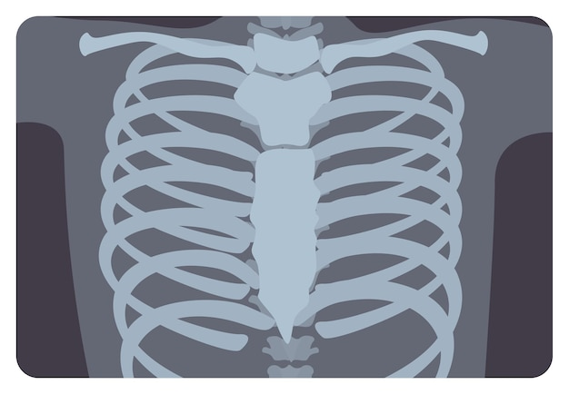 Radiograph, x-radiation picture or x-ray image of rib or thoracic cage formed by vertebral column and sternum. medical radiography and human skeletal system. flat monochrome vector illustration.