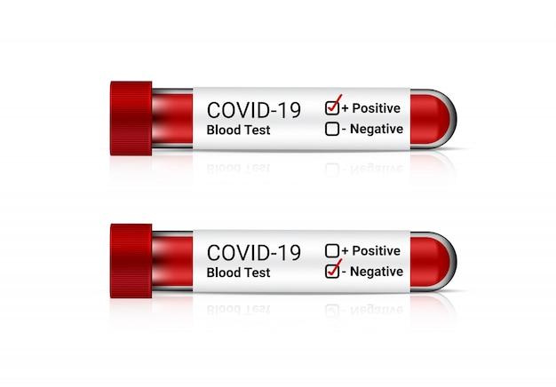 インフルエンザの陽性または陰性チェック用の現実的なcovid-19血液検査チューブ。白い背景の上の病院のツール。ヘルスケアと医療のコンセプトデザイン。