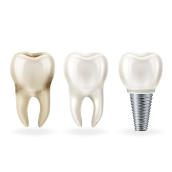 Realistic healthy tooth,tooth with caries and dental implant with screw.