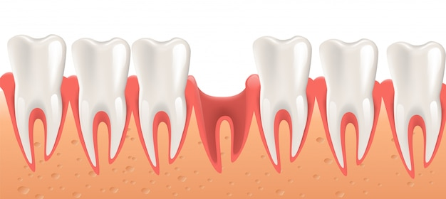 Realistic illustration dental surgery in 3d vector