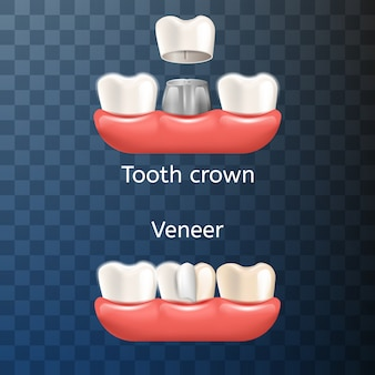Realistic illustration dental tooth crown, venner