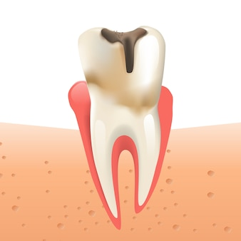 Realistic illustration enamel caries in 3d vector