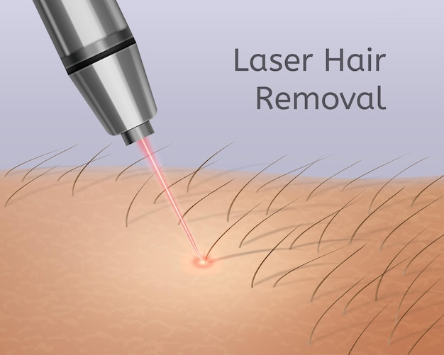 Realistic illustration of laser hair removal on legs
