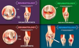 Реалистичная ревматология Медицина в 3d
