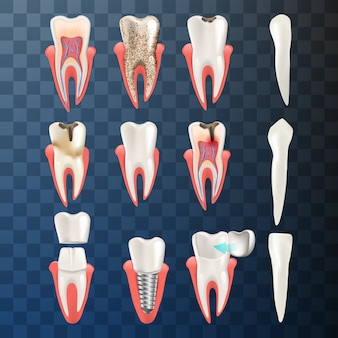 Realistic illustration set teeth different problem