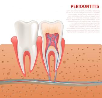 Реалистичная иллюстрация анатомии зуба в 3d вектор