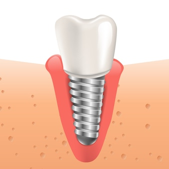 Realistic illustration tooth implant in 3d graphic