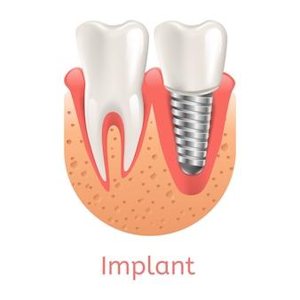 Реалистичная иллюстрация зубной имплантат в 3d графике Premium векторы