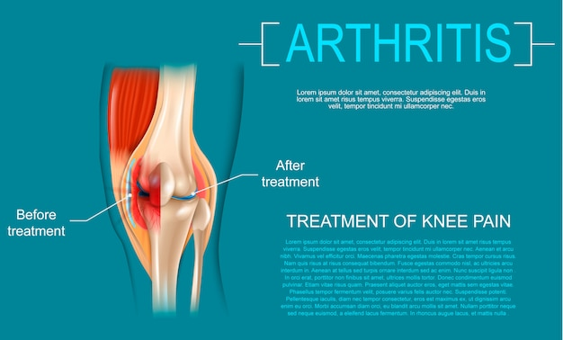 Realistic illustration treatment of knee pain