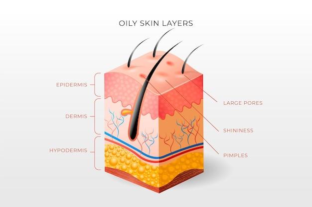 Illustrazione realistica degli strati della pelle grassa
